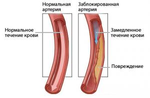 Сравнение здоровой и закупоренной артерий
