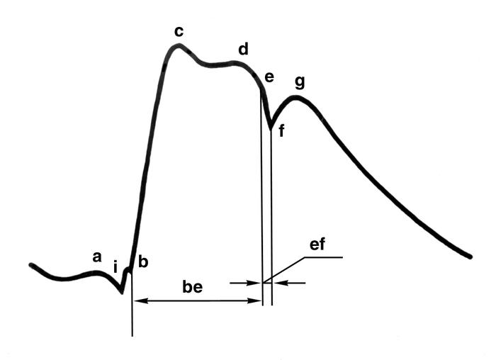 Что такое сфигмография Нормальный пульс у взрослого человека 942