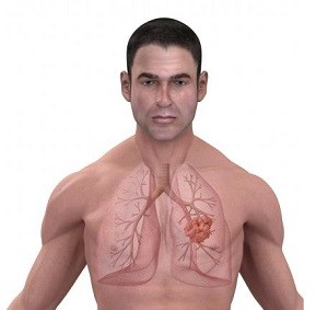 Новый тест от BioView: диагностика рака легких на самой ранней стадии