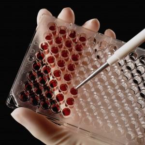 Анализ крови на биомаркеры