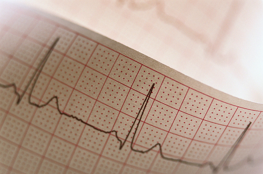 Насколько эффективно лечение дистрофических изменений миокарда?