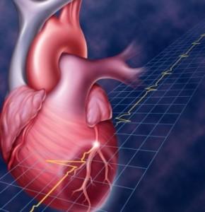Последствия обширного инфаркта