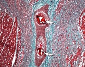 Признаки микроинфаркта