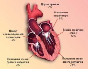Роль различных механизмов,ответственных за развитие кардиогенного шока