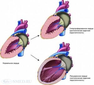 Типы сердечной недостаточности