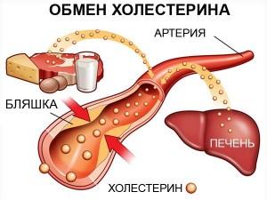 Образование опасных холестериновых отложений