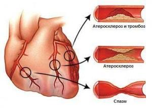 Прогрессирующая стенокардия