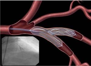 Ангиопластика и стенирование