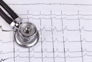 Электрокардиография-метод диагностики