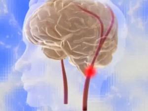 Стентирование сонной артерии