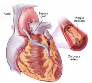 Суть аортокоронарного шунтирования