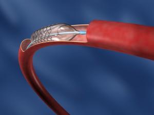 Вид стента внутри сосуда