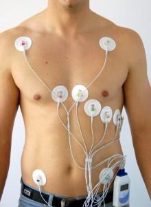 Мониторинг артериального давления и ЭКГ
