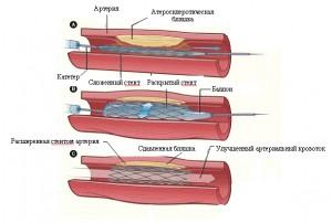 Эндоваскулярное протезирование сосуда