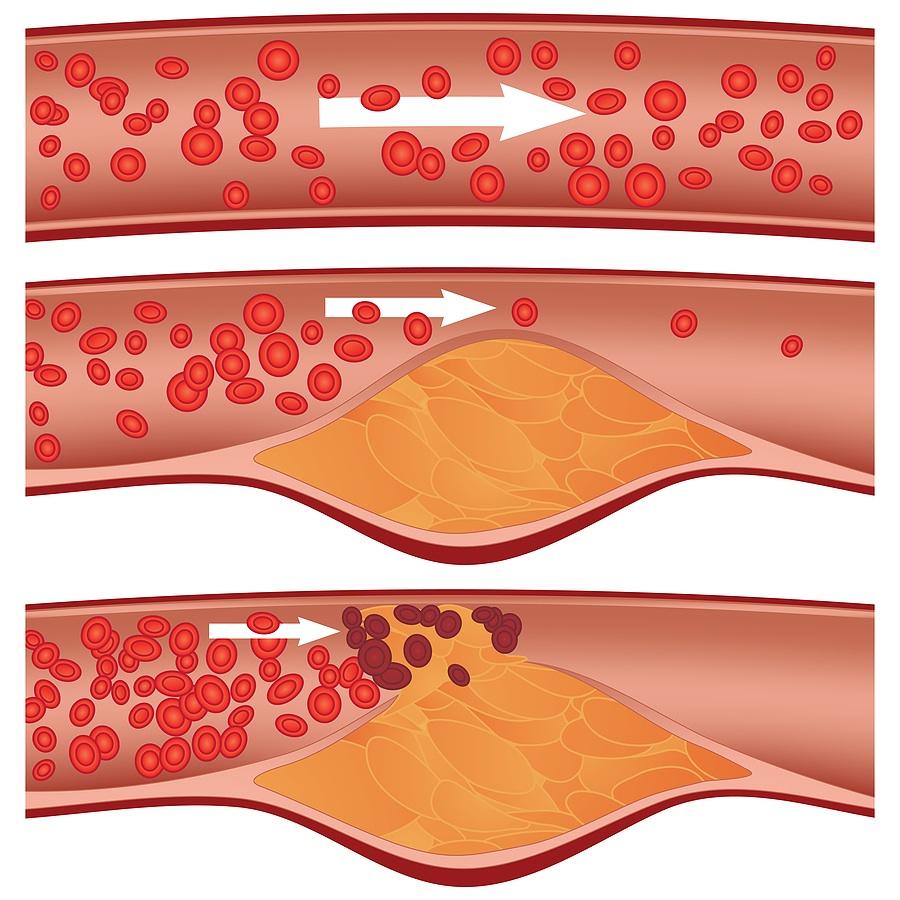 Атеросклероз сосудов сердца, головного мозга, церебральных сосудов, Симптомы и лечение