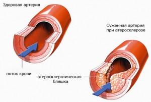 Особенности развития заболевания