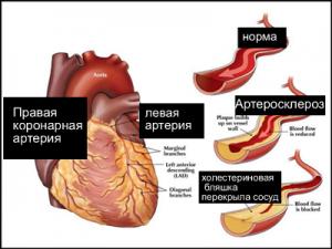 Особенности заболевания