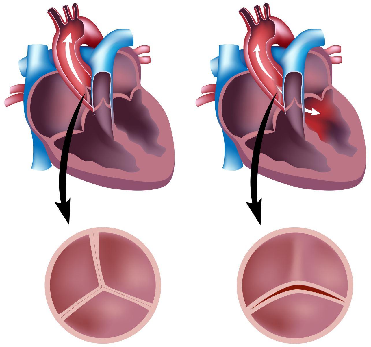 Двустворчатый аортальный клапан – врожденный порок сердца