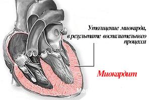 Особенности болезни