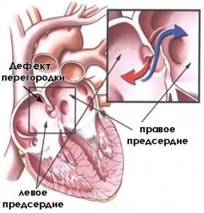 Особенности развития болезниОсобенности развития болезни