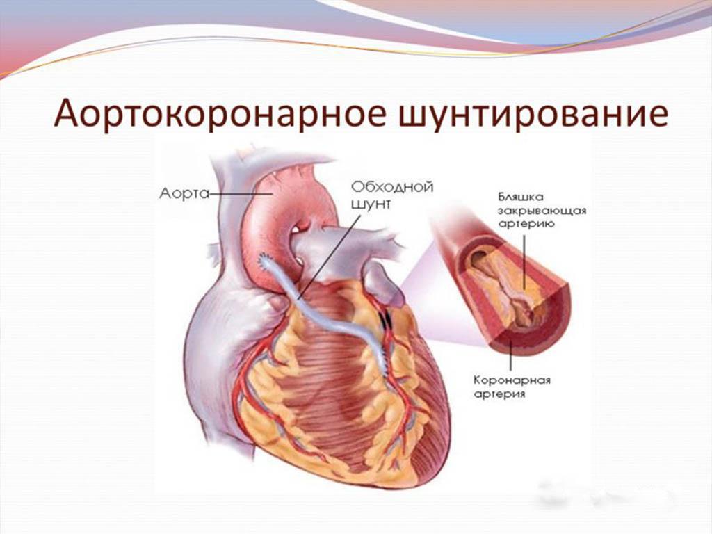 Атеросклероз аорты что это как лечить народными средствами