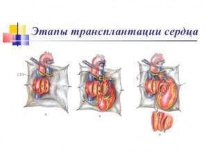 Хирургическое лечение недуга