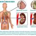 Этиология развития недуга