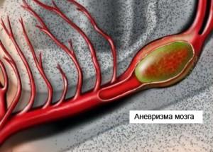 Что такое аневризма головного мозга