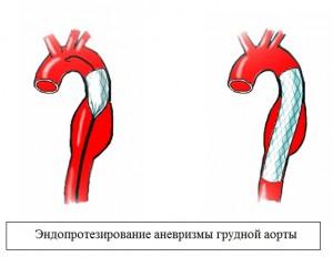 Хирургический метод воздействия