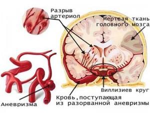 Как развивается патология