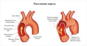 Общие сведения о заболевании