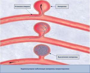 Оперативное лечение аневризмы
