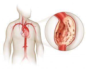 Особенности развития аневризмы