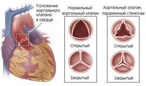 Формы и причины развития болезни