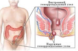 Причины тромбозов и факторы риска