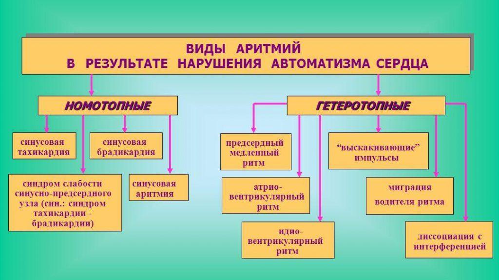 виды аритмии-1