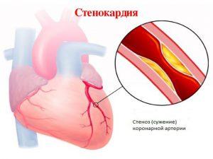 Стенокардия симптомы-1