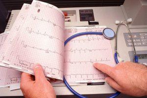 аритмия сердца лечение-4