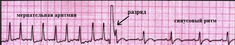 Фото: мерцательная аритмия сердца, причины симптомы лечение