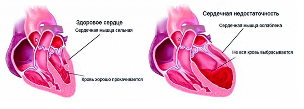сердечная недостаточность симптомы 10