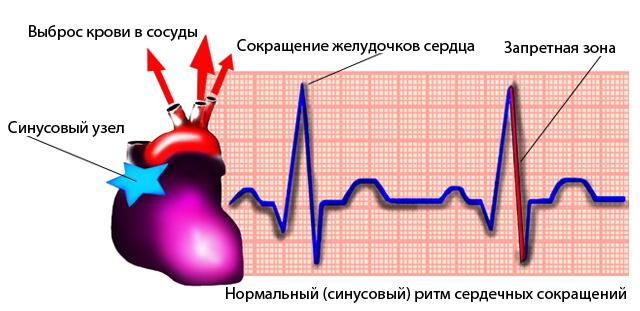 Болезнь сердца синусовая брадикардия
