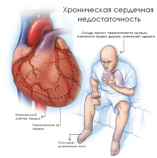 Кашель при сердечной недостаточности: симптомы и способы лечения