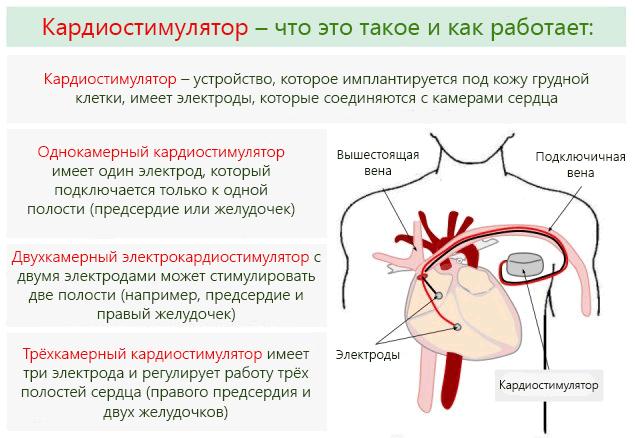 брадикардия-сердца-что-это-такое-3