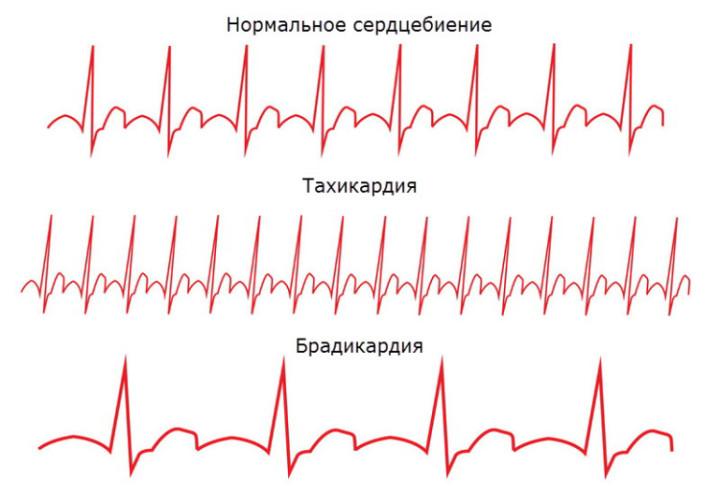 сердечная-брадикардия-что-это-такое-5