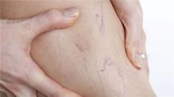 отзывы-о-детралексе-при-варикозе-4