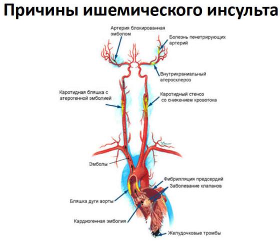 ишемическая-болезнь-сердца-лечение-01