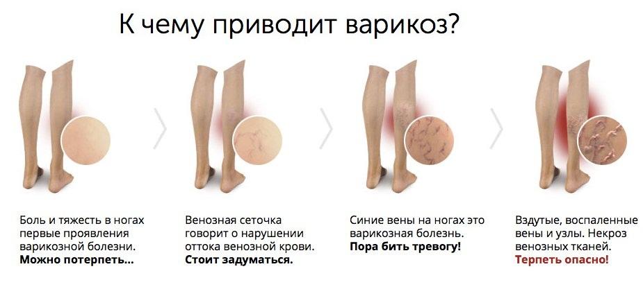 как-лечить-варикоз-ног-у-женщин-3