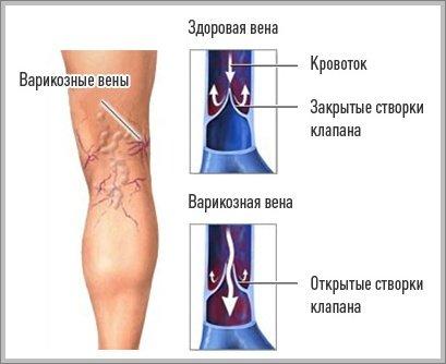 мазь-от-варикозных-вен-на-ногах-1