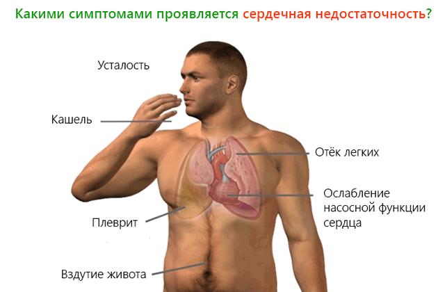 сердечная-недостаточность-симптомы-лечение-таблетки-04