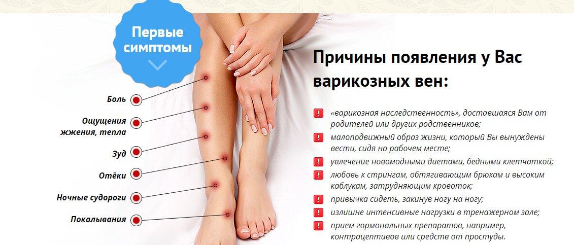 Флебология на дому